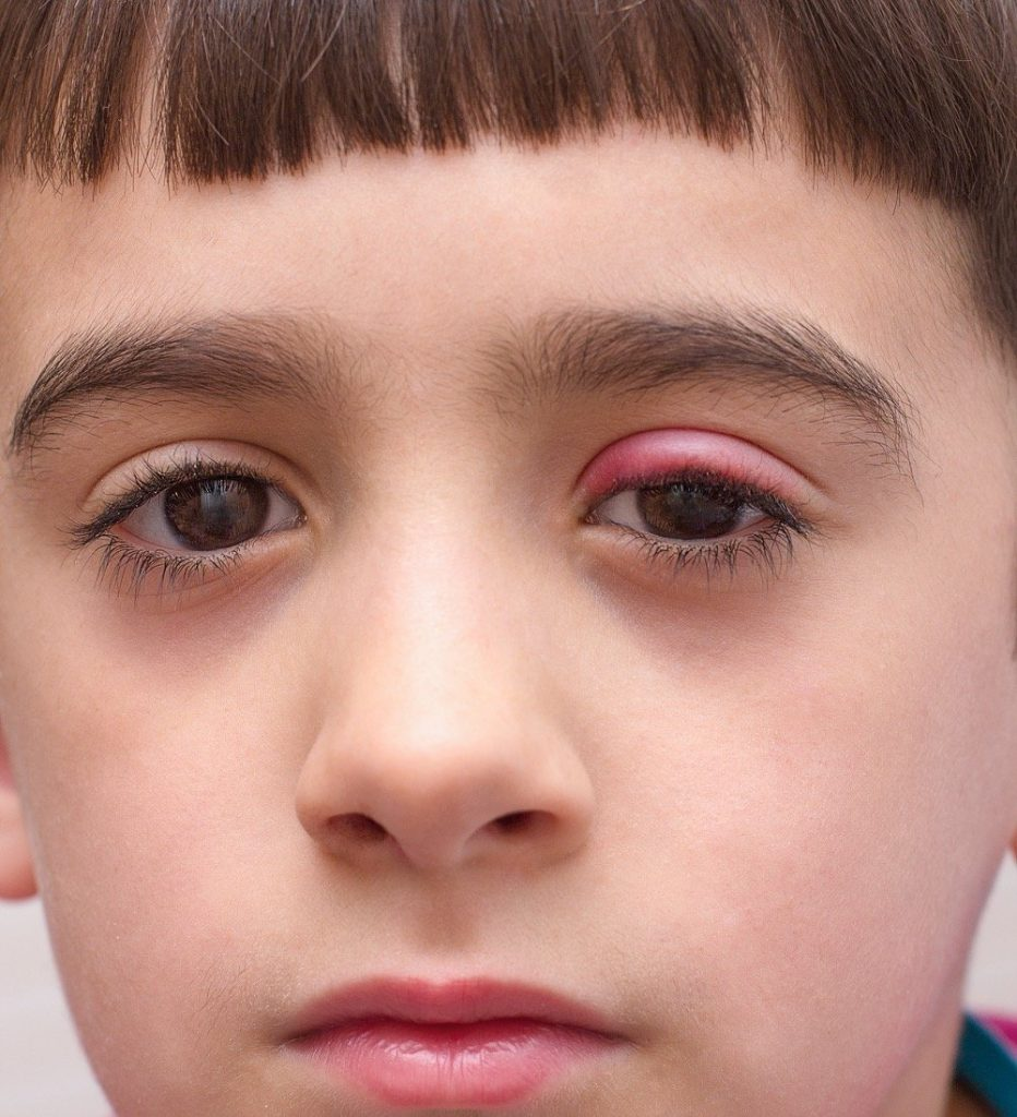 Read more on How to Get Rid of an Eyelid Stye