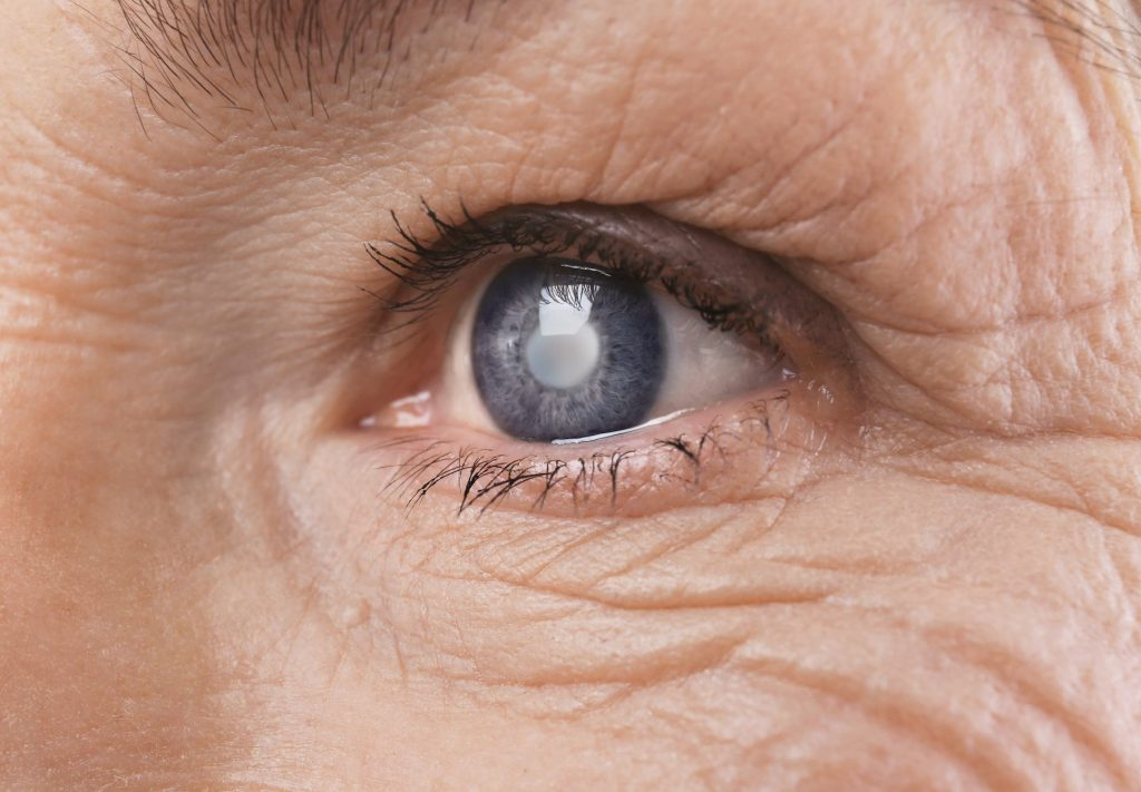 Common Types of Cataracts and Treatments